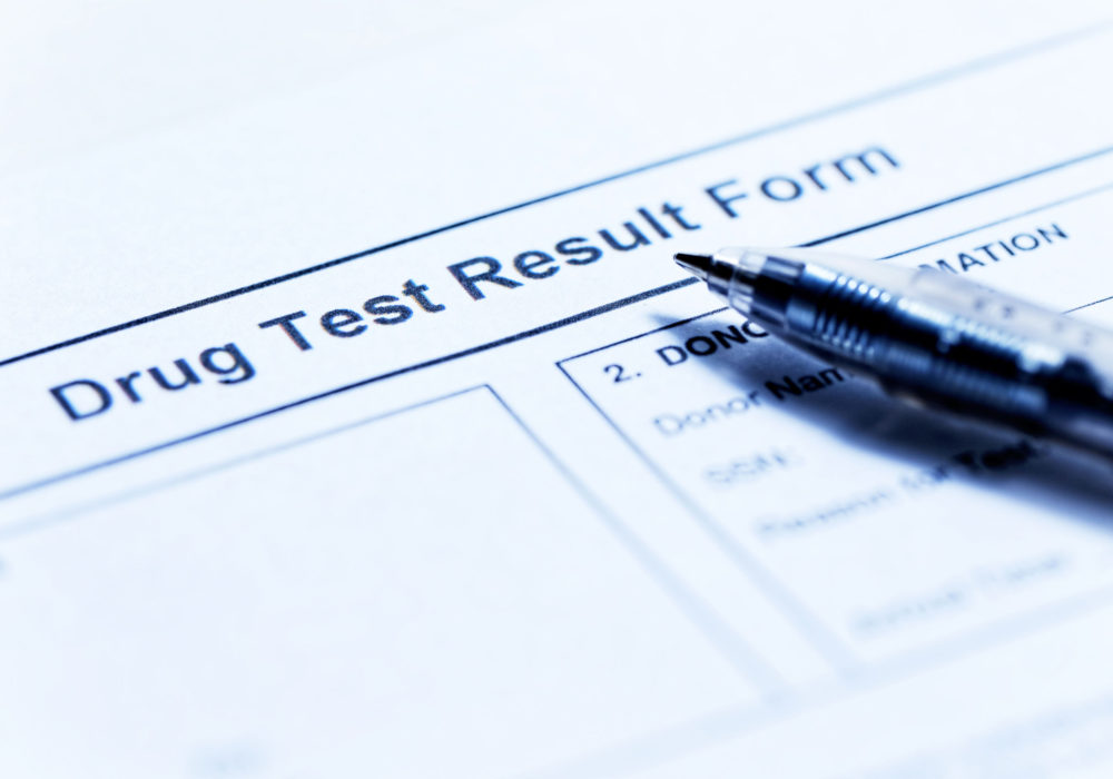 Can My Employer Drug Test Me After A Minnesota Work Injury?